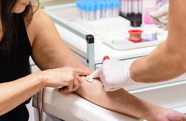 Можно ли пить перед клиническим анализом крови